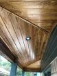 wood ceiling patio
